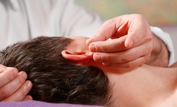 Akupunktur-Anwendung in der Praxis für Osteopathie und Naturheilkunde Werner Zender